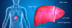 A Complete Guide to Fatty Liver Treatment